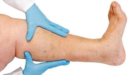 Лечение варикоза гамамелисом